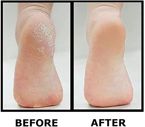lectric Callus Remover By Foot Love