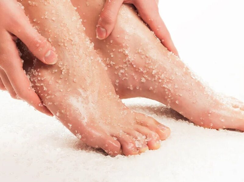 Dead Skin On Feet – 4 Different Approaches You Need To Know