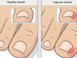 Essential Things You Need to Know About Ingrown Toenails