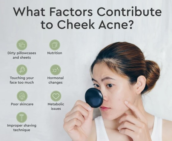How to Get Rid Of Cheek Acne